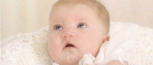Baby Mia Robertson after cleft lip surgery