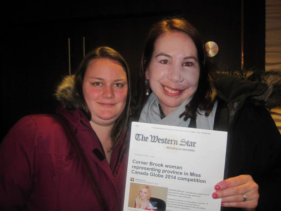 Two women, one with a reconstructed face, hold sheet of paper w news about Katie Barrow.